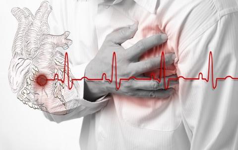 Этого про инфаркт вы возможно не знали